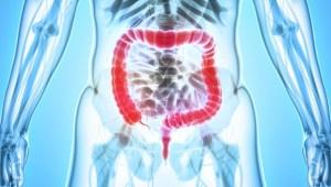 Alimente care curăță intestinele