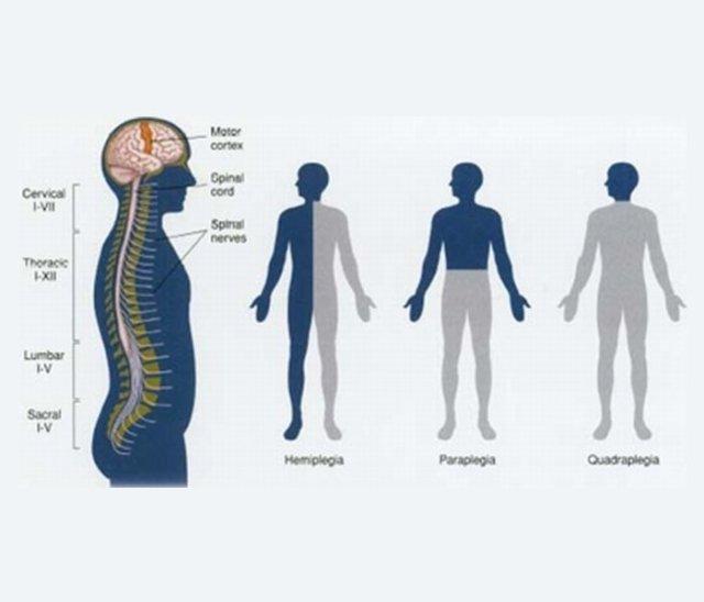 tetraplegie
