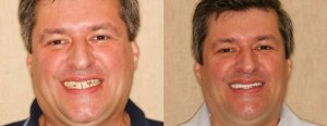 Smile makeover for Color and shape