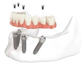 all-on-four-dental-implants-charlotte-nc
