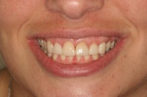 failed veneers