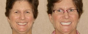 Kim-before and after porcelain venners