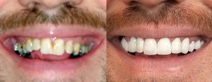brians-smile-before-after