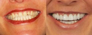 Molly's Charlotte Smile Makeover