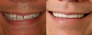 Rex's smile up close- new veneers and crowns