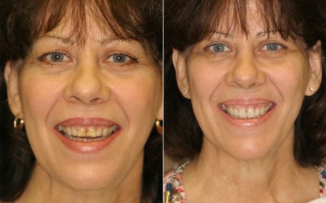 smile-makeover-study