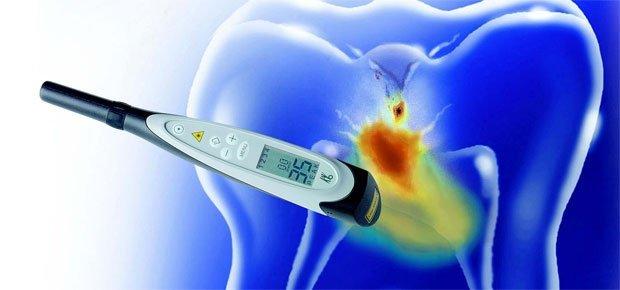 laser cavity detection adult dentistry ballantyne charlotte nc