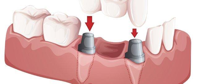 porcelain dental bridge adult dentistry ballantyne charlotte nc