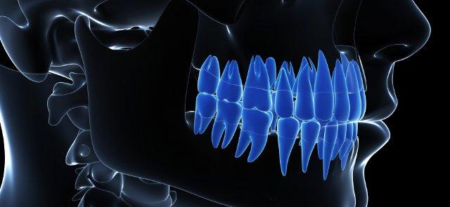 digital dental xrays adult dentistry ballantyne charlotte nc
