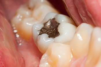 Tooth Colored Fillings - A Perfect Match mercury