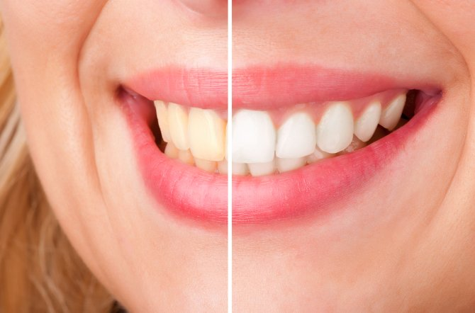 adult dentistry of ballantyne ZOOM! whitening teeth smile charlotte nc 28277