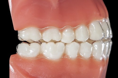 Adult-Dentistry-of-Ballantyne-Charlotte-NC-invisalign-clear-braces