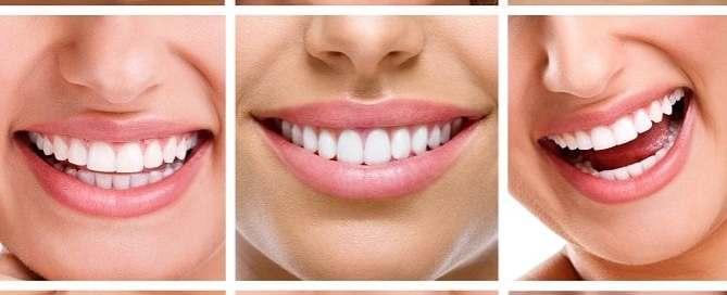 Adult-Dentistry-of-Ballantyne-Charlotte-NC-straigh-smile-invisalign-adult-braces