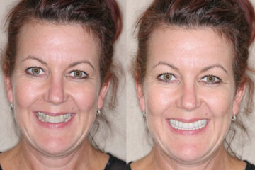 before after pictures for dentistry