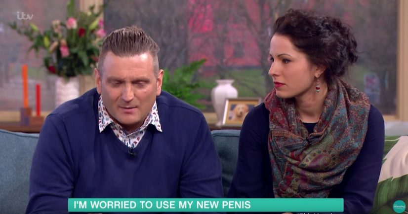 Man With Bionic Penis Photo