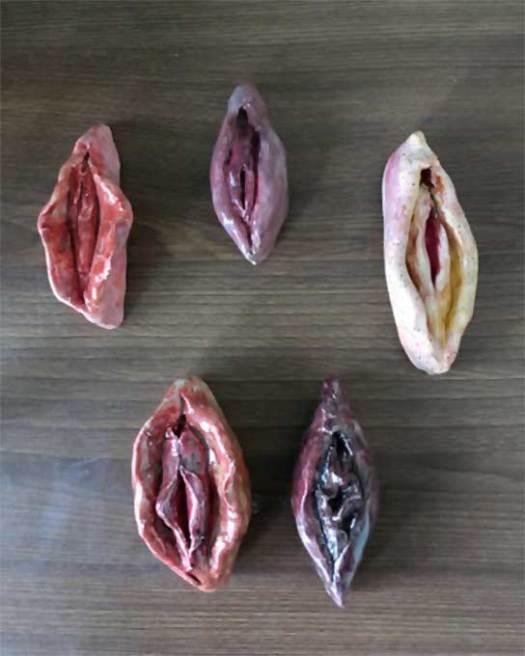 Different vagina types
