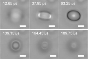 Focal Plane Shift Imaging for the Analysis of Dynamic Wetting Processes