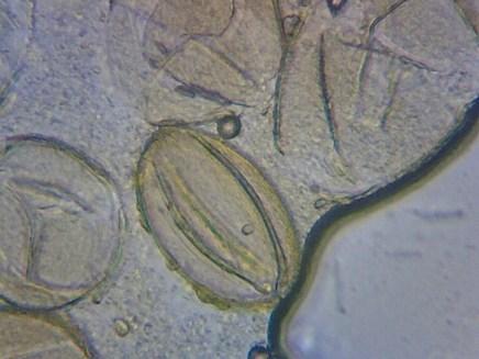 Pollen grains - photo by Thomas Bickerdike