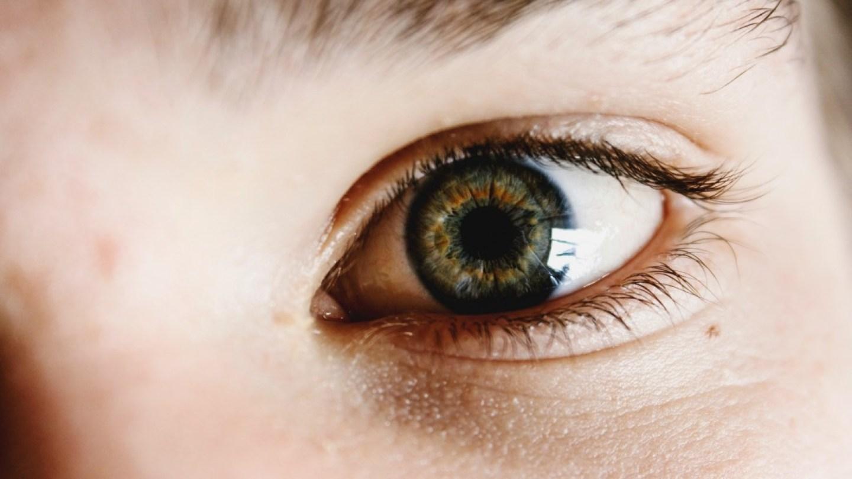 childs eye hazel brown colour