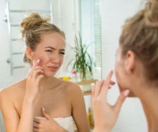 girl with irritated skin