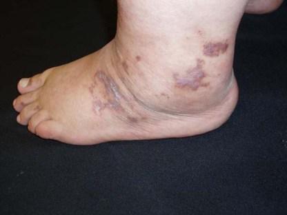 Please see DermatologyAdvisor for further details.