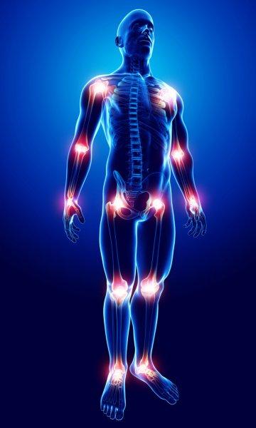 Ayurveda for Arthritis