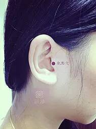 acupuncture-point-1
