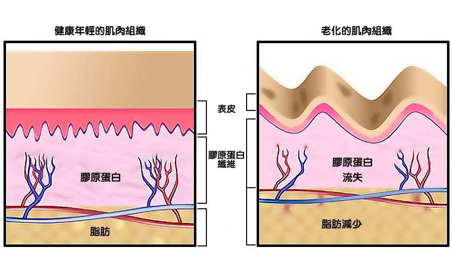 皮膠原蛋白纖維