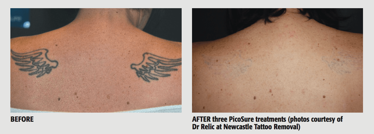 28 removal newcastle laser removal newcastle