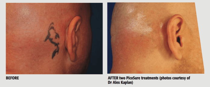 BEFORE & AFTER two PicoSure treatments (photos courtesy of Dr Alex Kaplan)