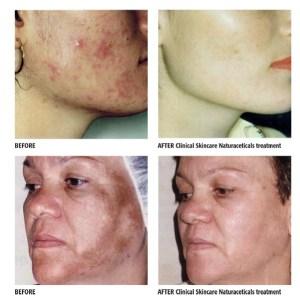 ClinicalPRO_Naturaceuticals.indd