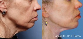 AccuTite before and after