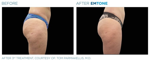 Before and After 3rd EMTONE Treatment