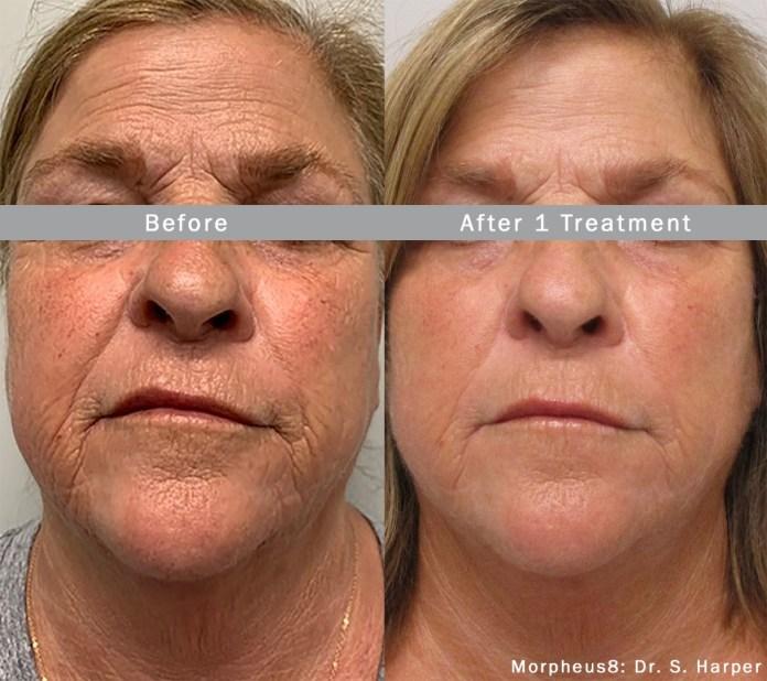 Morpheus8 treatment on the face
