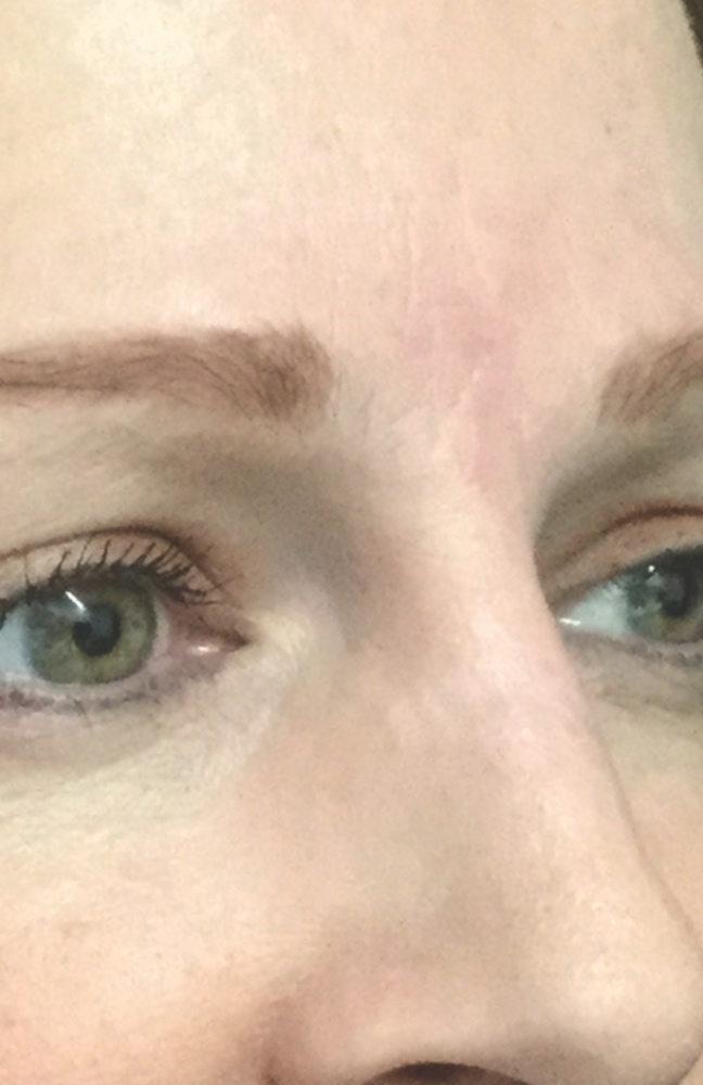 AFTER treatment with Fraxel