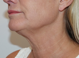 AFTER TotalSkin Solution treatment with GENIUS and LaseMD ULTRA