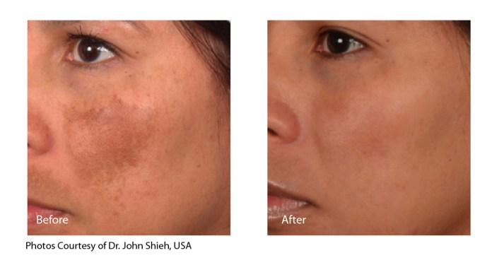 Before and After treatment for Melasma with Spectra XT