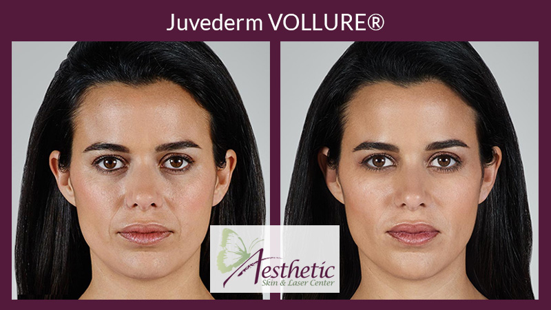 Juvederm Vollure Pittsburgh