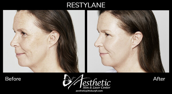 Testimonials-Before-After-Restylane