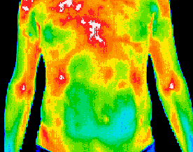 Thermography-3
