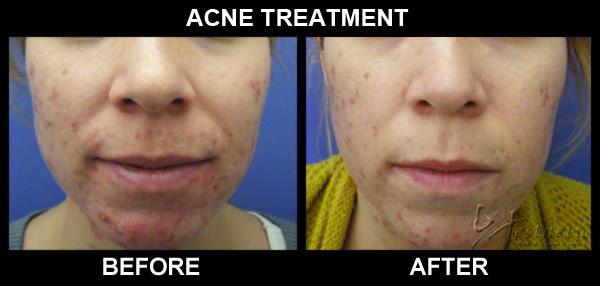 acne_acleara_bna