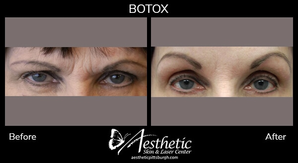 botox-b-a-1