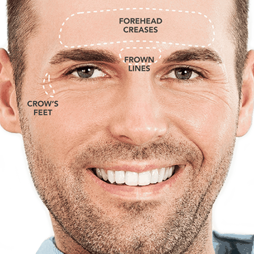 Brotox - Botox for men in Pittsburgh