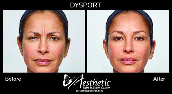 dysport-b-a-female