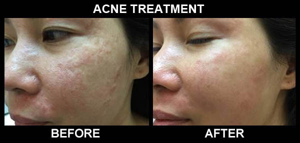 iEllios before and after acne treatment photo