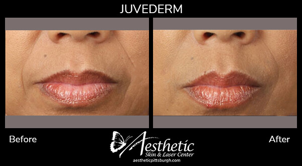 juvederm3_before_after-1
