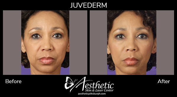 juvederm4_before_after-1
