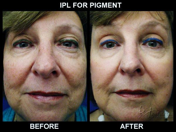 PhotoFacial-IPL