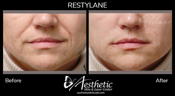 restylane1_before_after-1