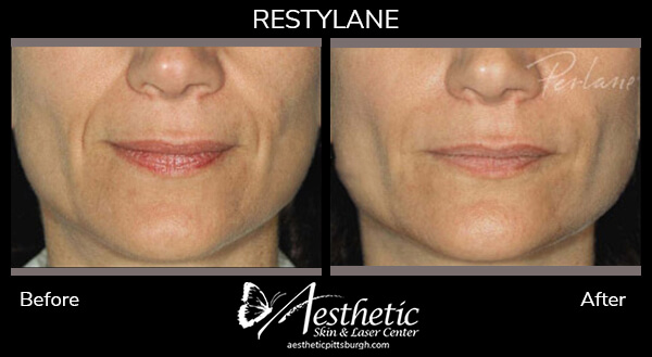 restylane2_before_after-1-1